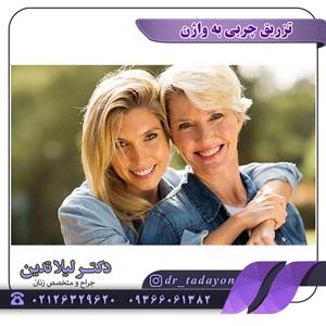 عمل تزریق چربی به واژن