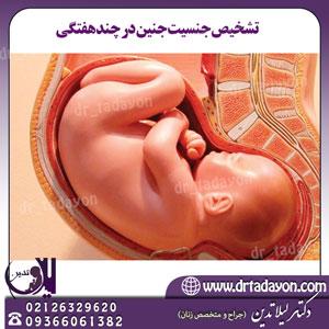 تشخیص-جنسیت-جنین-در-چند-هفتگی