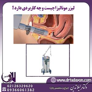 کاربرد لیزر مونالیزا