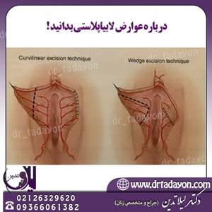 عوارض لابیاپلاستی