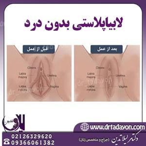 عمل لابیاپلاستی بدون درد